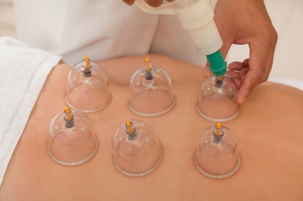 Research: The Use of Wet Cupping for Persistent Nonspecific Low Back Pain