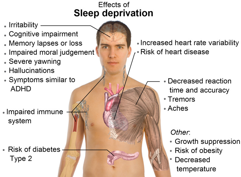 mn-insomnia-cure-risk-sleep_deprivation-clinic-help-consult